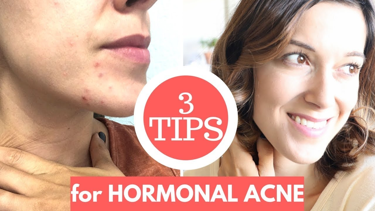 how to get rid of hormonal pimples